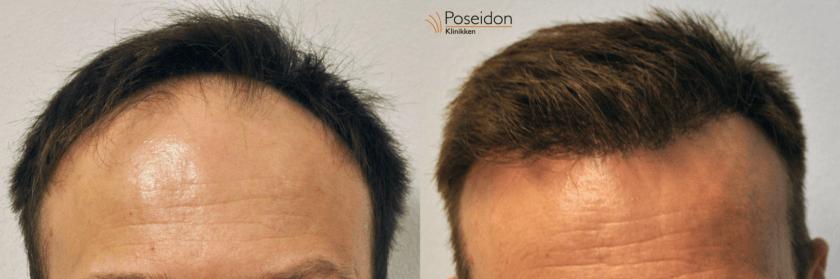 Thomas hårtransplantation før og efter