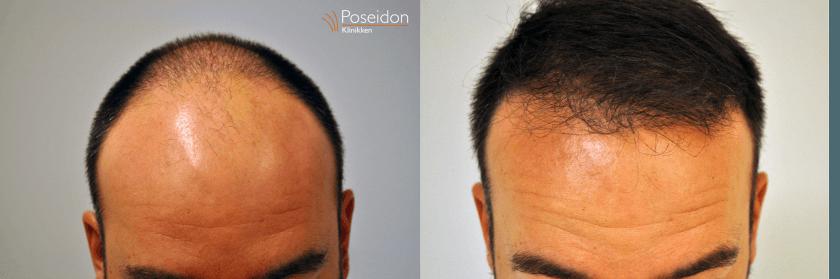 Hårtransplantation før og efter