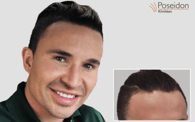 Det er vigtigt man er glad for sit hår