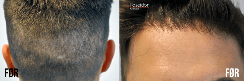 hårtransplantation i tyrkiet før