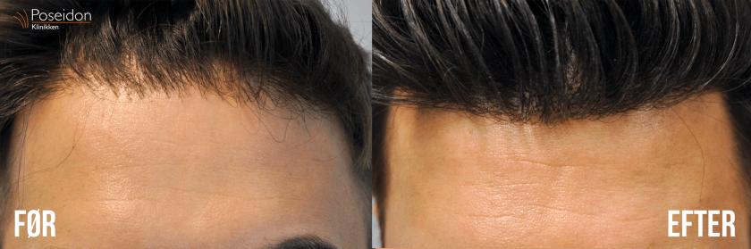 hårtransplantation i tyrkiet før og efter