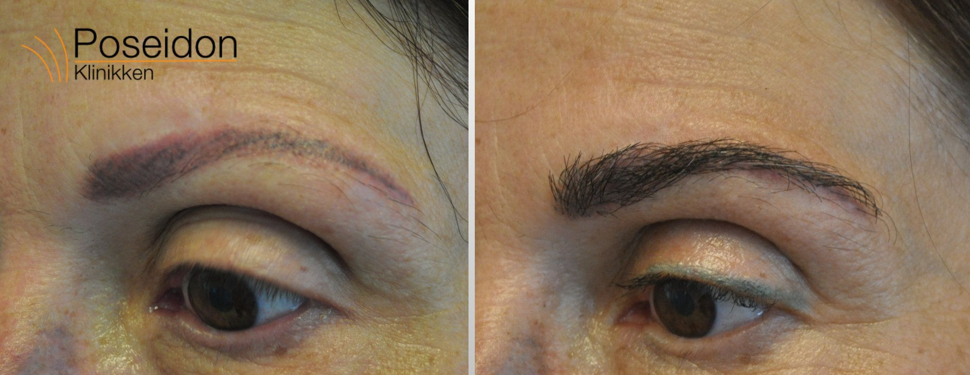 øjenbrynstransplantation foer og efter
