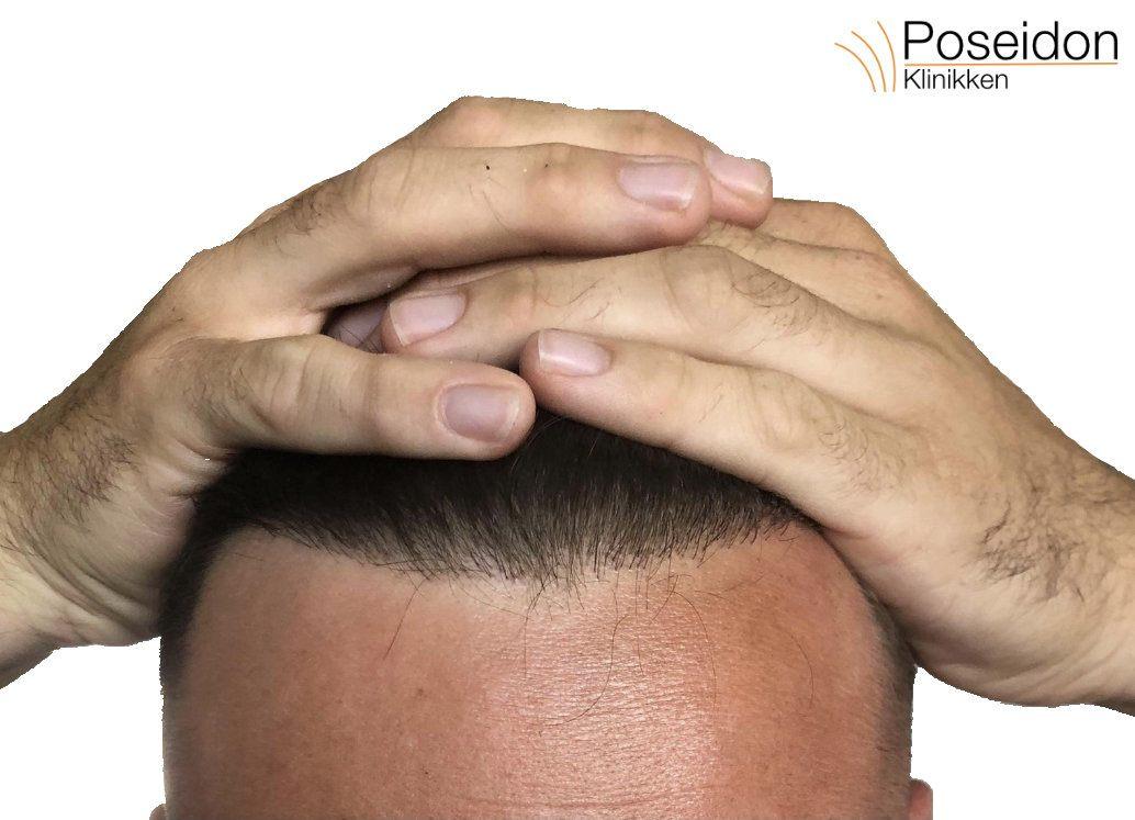 hår operation pris